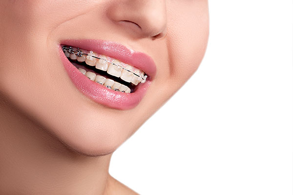 How An Orthodontist Can Help You With Your Bite