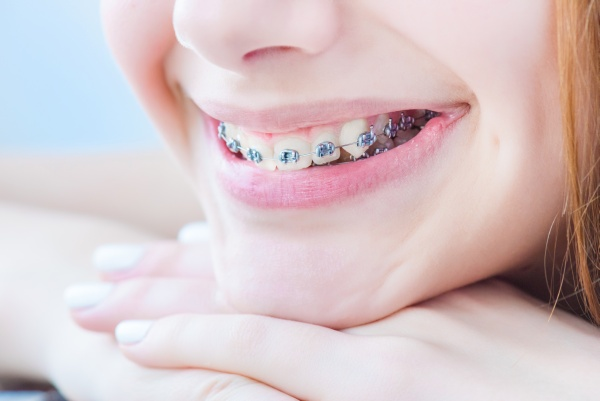 An Orthodontist Answers Questions About Fastbraces