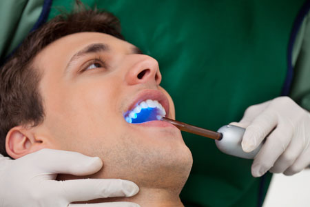 Visit Us For Teeth Whitening – When Results Matter